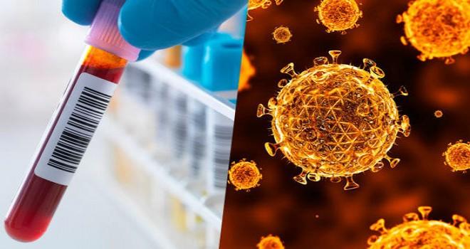 Bilim insanları AIDS'e neden olan HIV virüslü hücreleri ilk kez imha etmeyi bașardı